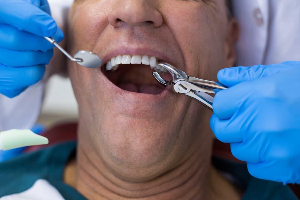門牙做牙橋行得通嗎?到底植牙好還是做牙橋好?